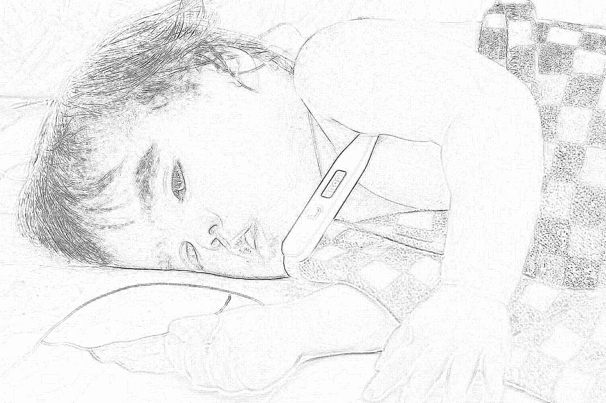 Мышиная (геморрагическая) лихорадка. Фото, симптомы у 6