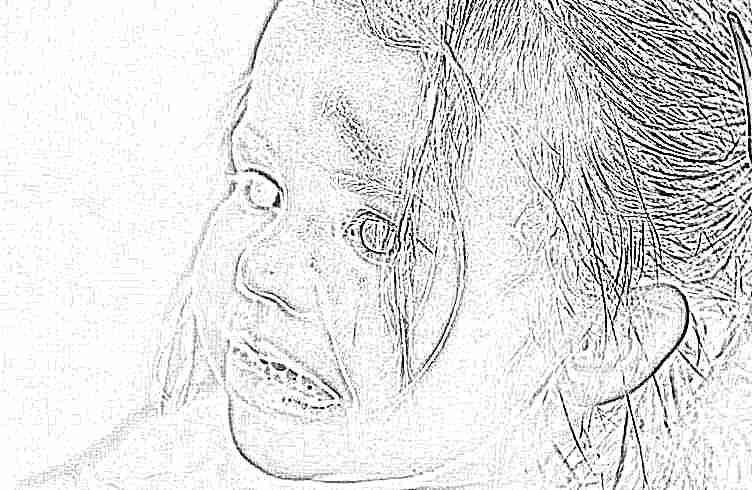 Чем обработать ребенку рану и как это сделать правильно