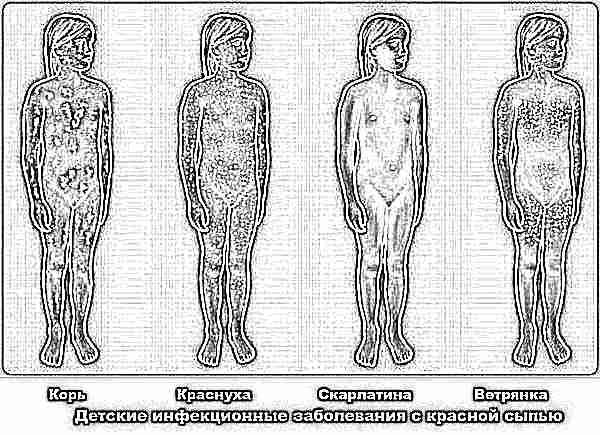 сыпь на теле у ребенка 11 лет фото с пояснениями