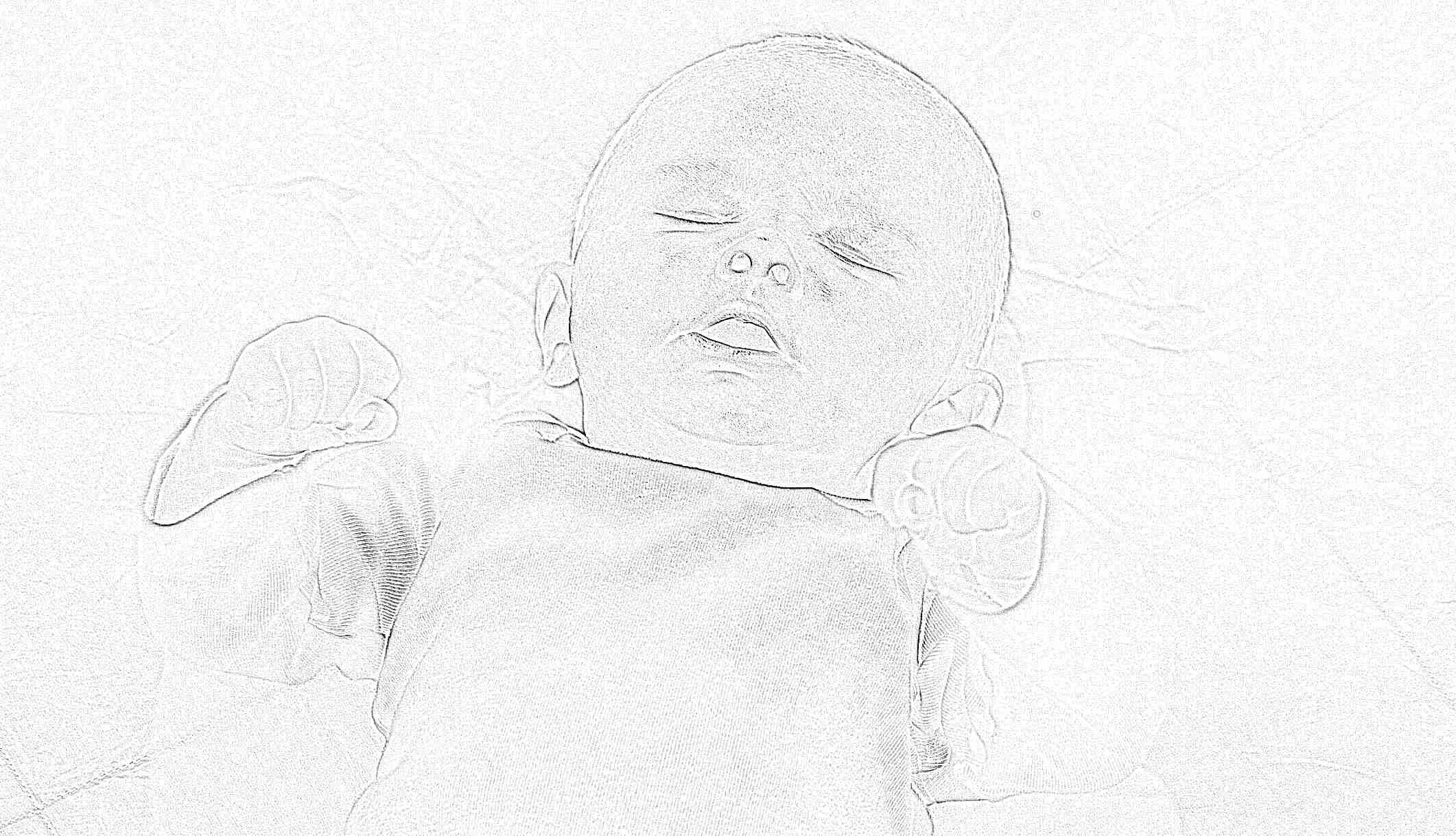 Ребенку 3 месяца кривошея фото