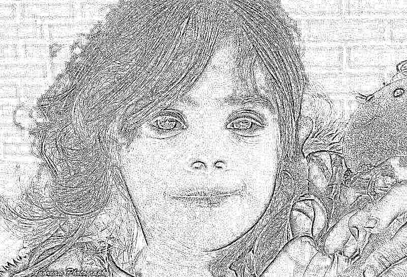 Сколько живут дети с синдромом дауна