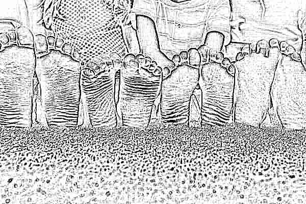 Как исправить плоскостопие у подростков