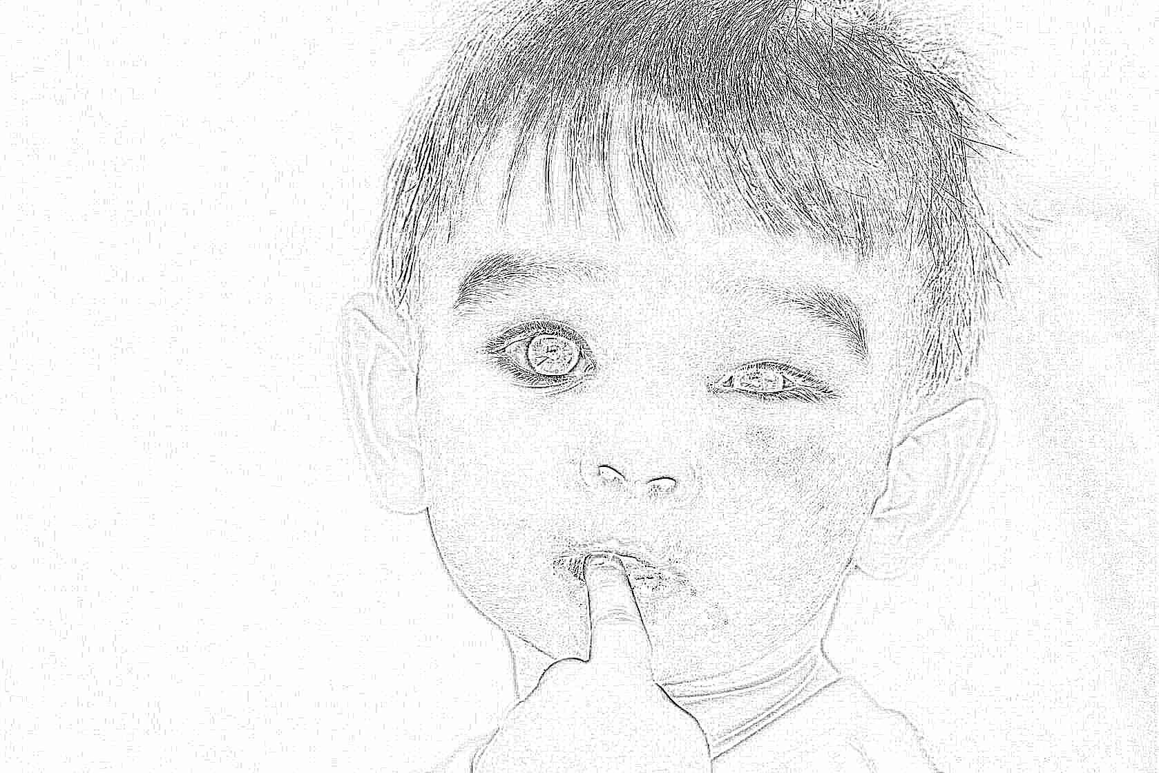 Фото после удаления пупочной грыжи у ребенка