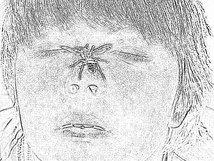 Шишка после укуса комара — Nasekomie
