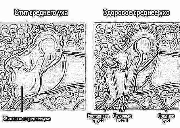 как насморк осложнения на уши таких тканей может