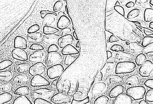 Что делать при плоскостопии у ребенка причины методы лечения и профилактики в домашних условиях