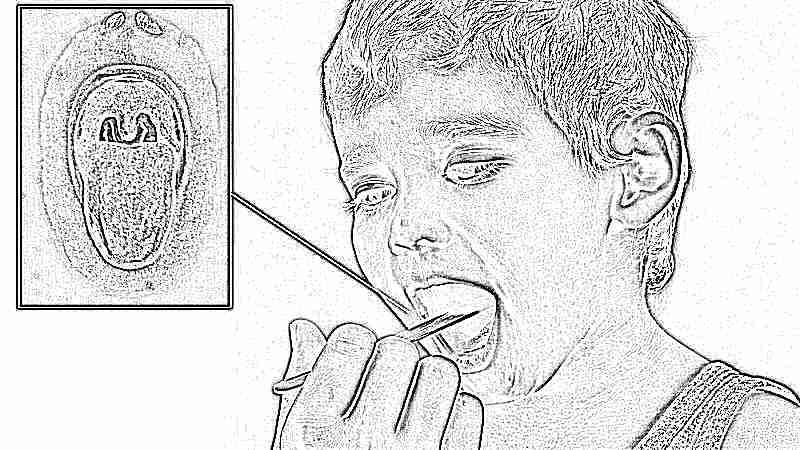 стафилококк в горле фото и в носу