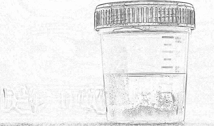 Наличие ацетона в моче у беременных 82