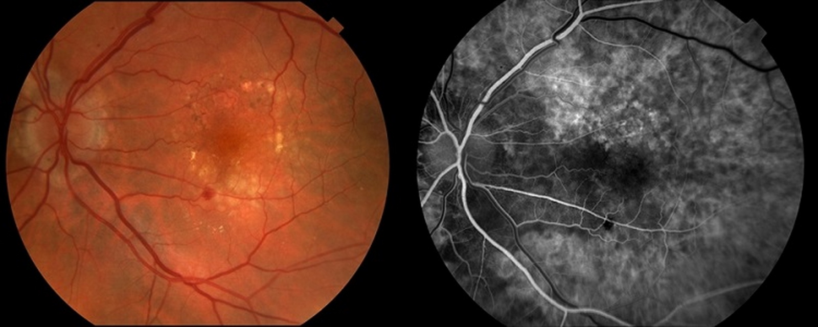 Диабетическая ангиопатия глазной сетчатки