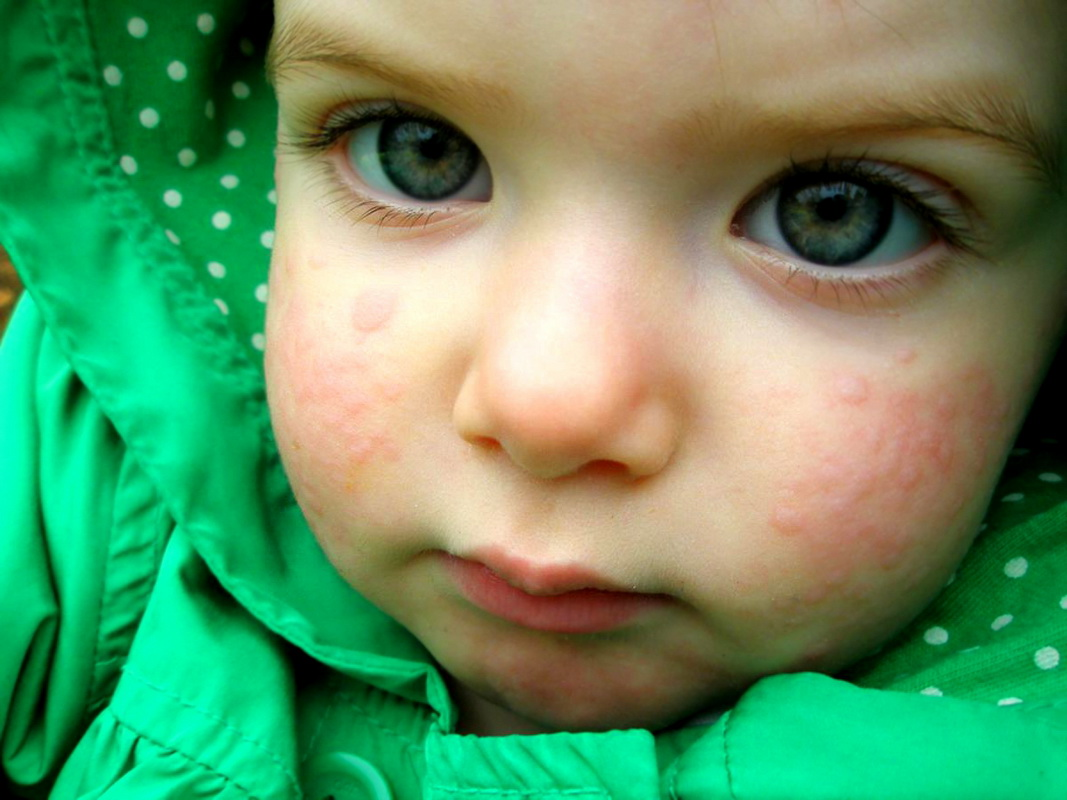 Сыпь на лице у грудничка, новорожденного ребенка (54 фото): таблица детских инфекций с пояснениями, причины красной мелкой сыпи на щеках