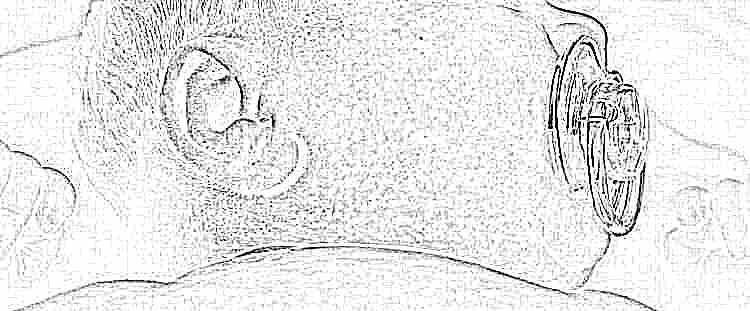 Герпетическая сыпь на теле у ребенка фото с пояснениями