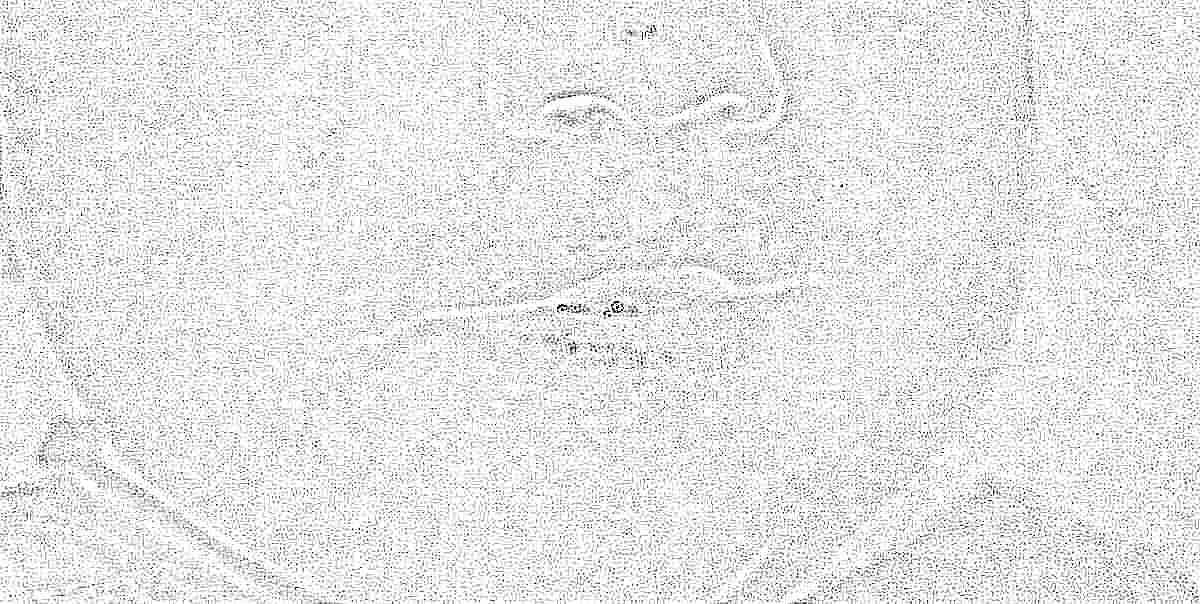 Сыпь у рта у ребенка 2 года фото
