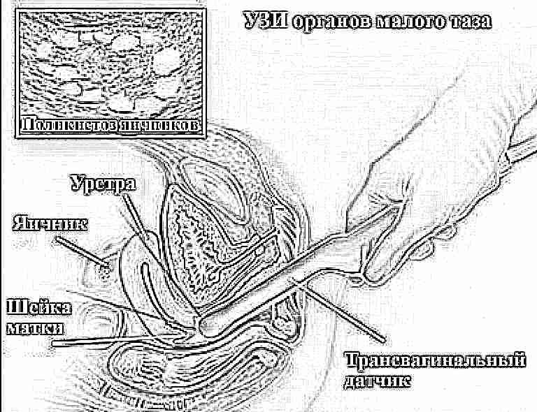 Видео матка у гинеколога