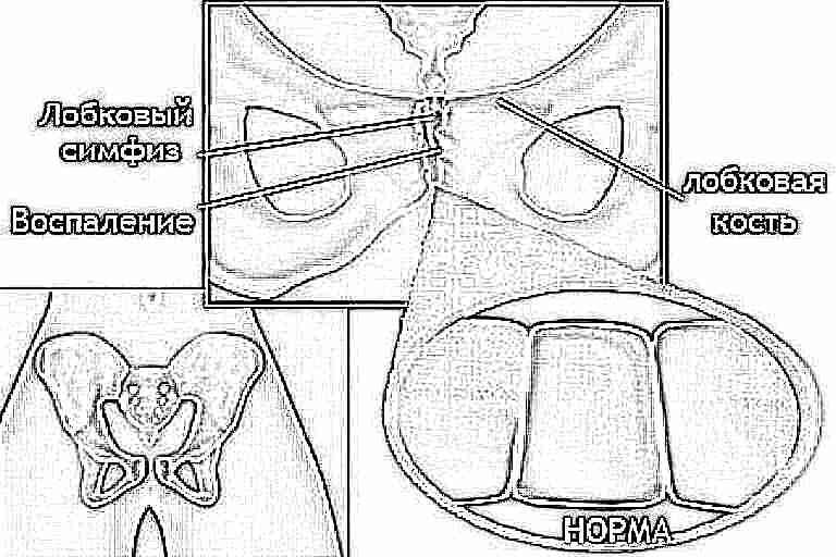9 месяц беременности болит лобковая кость