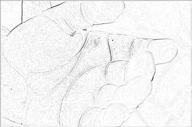 Сыпь у ребенка на пальцах фото