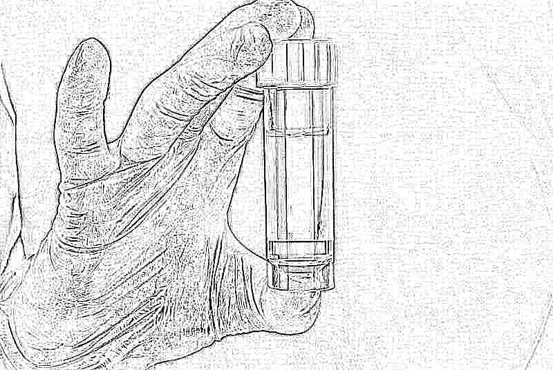 Белок в моче причины и симптомы повышения белка в моче