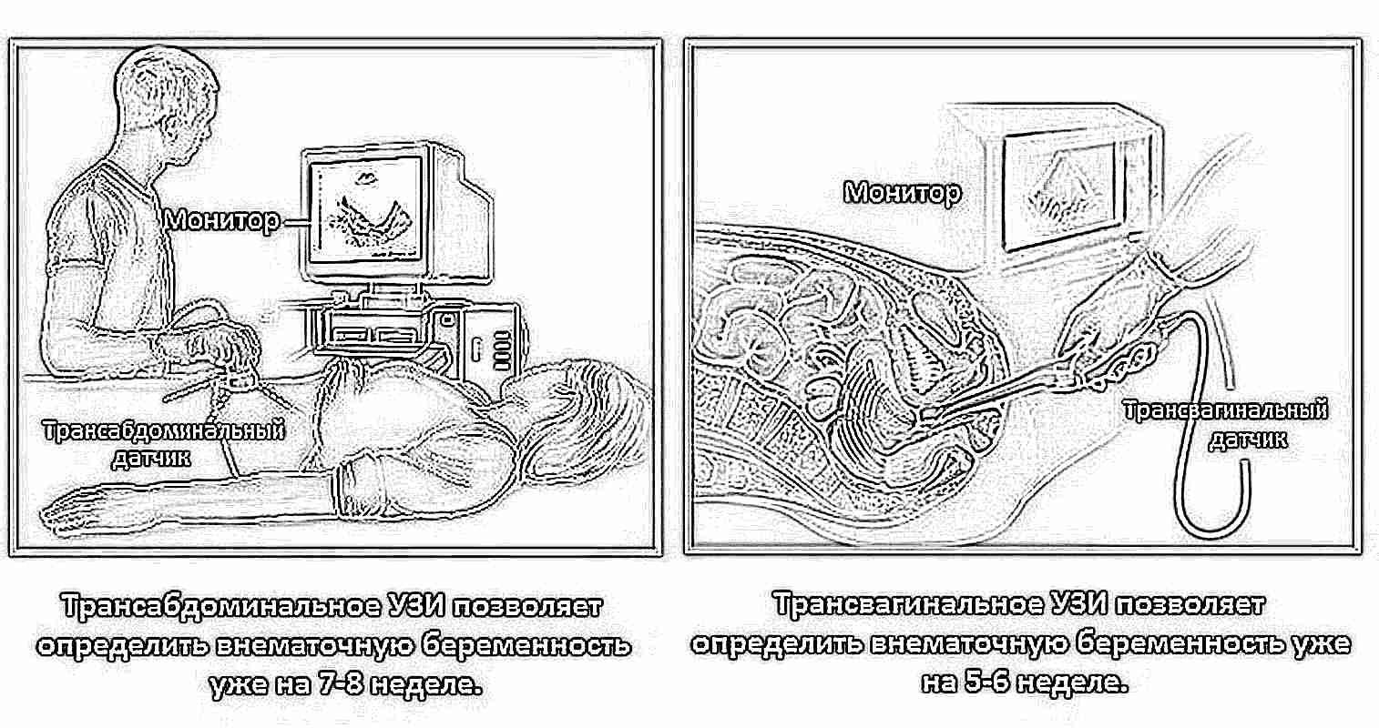 УЗИ органов малого таза. Что показывает, как делают, как подготовиться? 59