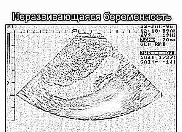 Регресс у беременных это 61