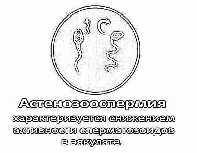 Сперматозоиды с аномальной морфологией что это значит разделяю
