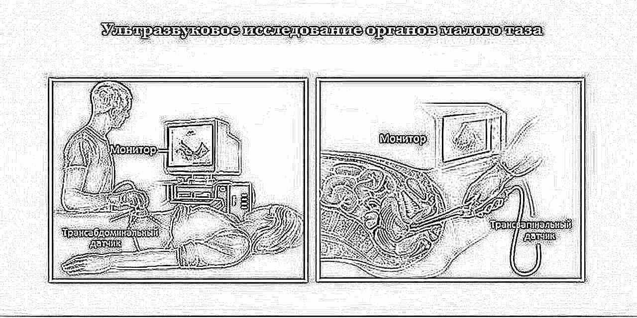 Гомоцистеин при планировании беременности: норма, отклонения