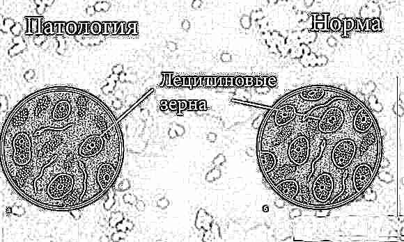 Как понизить лейкоциты в простате