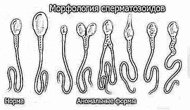 Что лучше попить мужу чтобы увеличились сперматозоиды