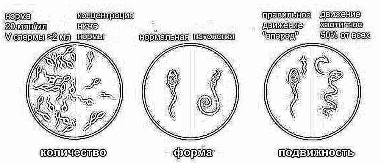 Повышенная вязкость спермы недостаточное количество активных сперматазоидов