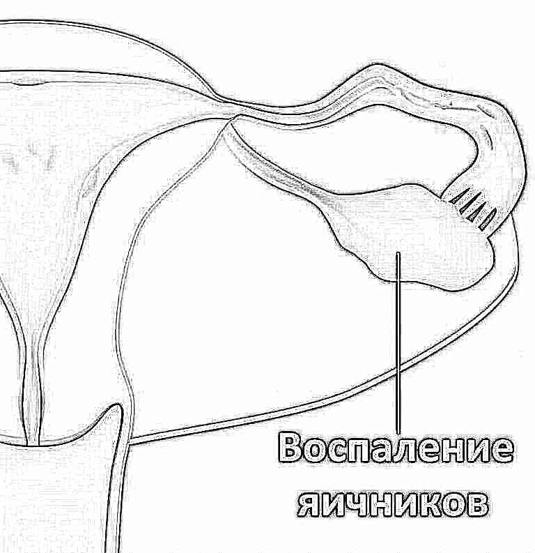 Плацента низко расположена секс возможен