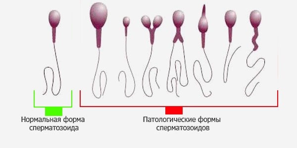 Какой вид x или y сперматозоида находится в смазке