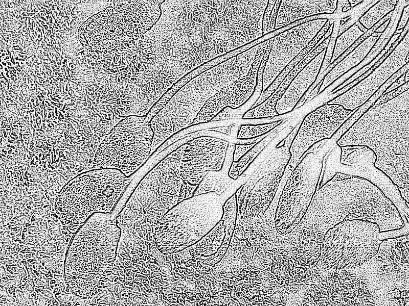 Где образуются сперматозоиды