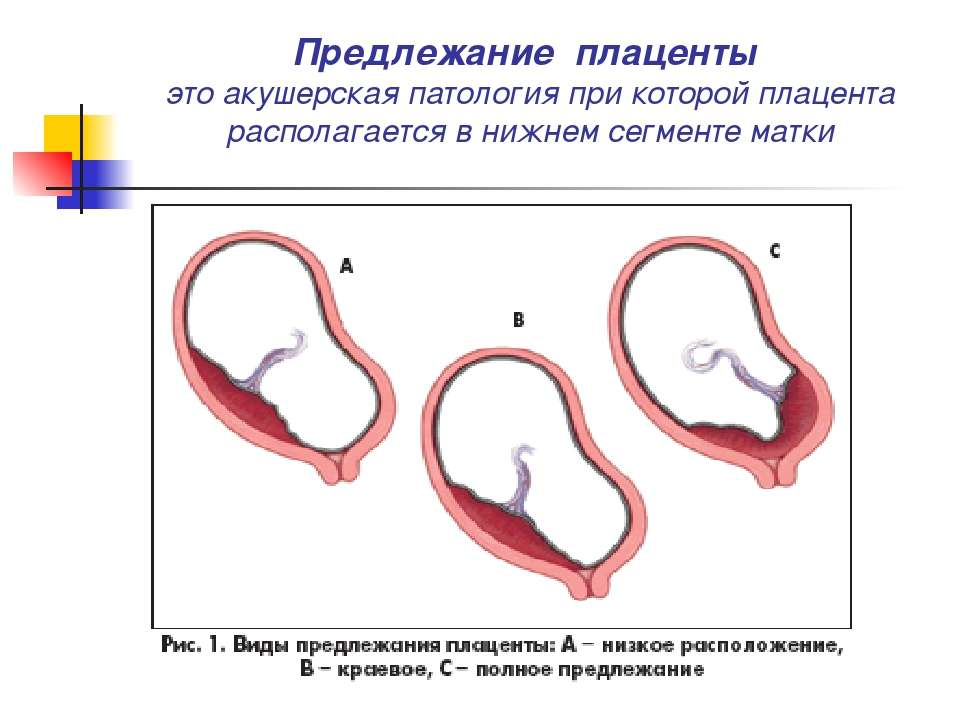 влагалище на ранних сроках беременности