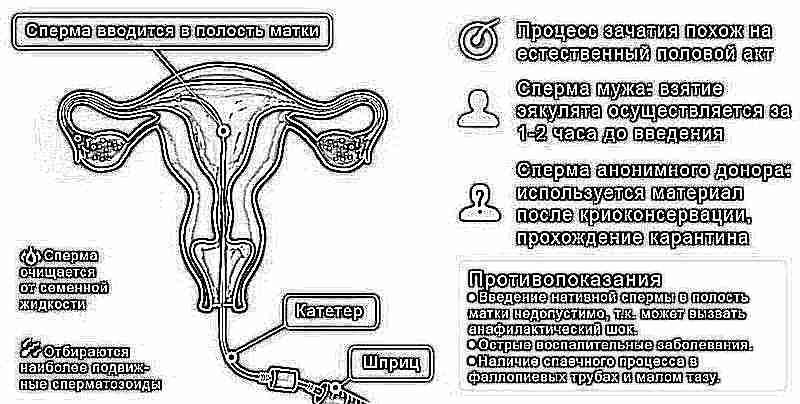 Сперма прохождение к матке