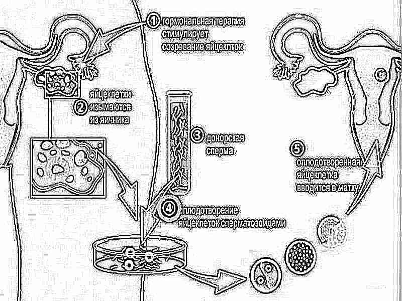 Отзывы кто делал эко замороженными сперматозоидами