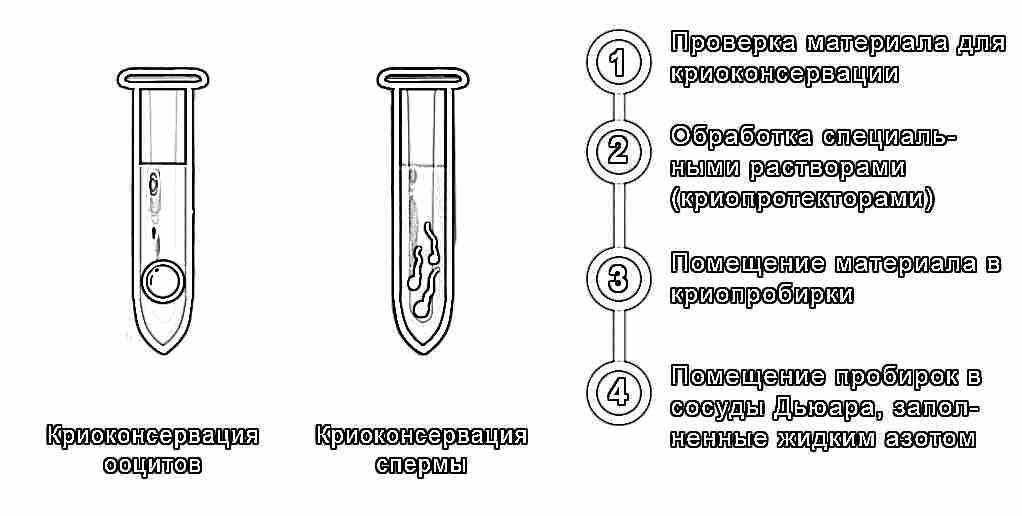 Криоконсервация спермы срок хранения