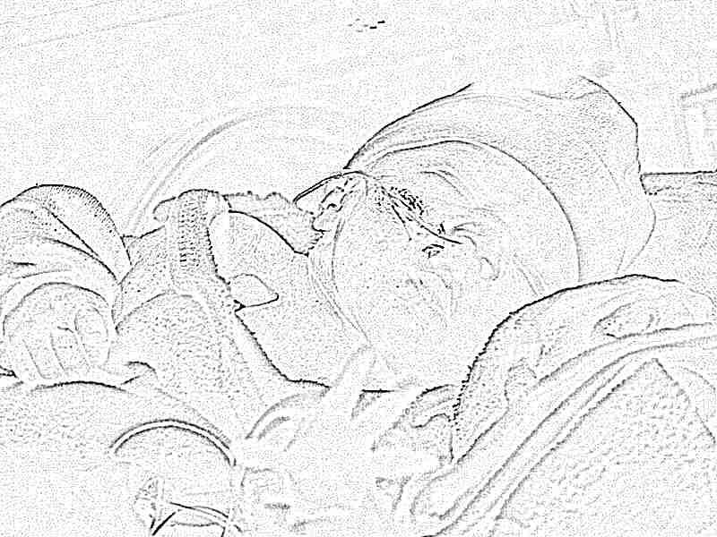 Церебральная ишемия у новорожденного легкой степени