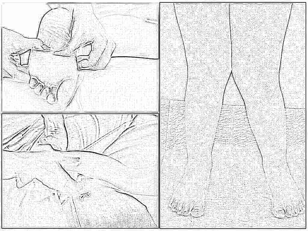 Как делать массаж при вальгусном искривлении коленных суставов снятие отеков в суставах