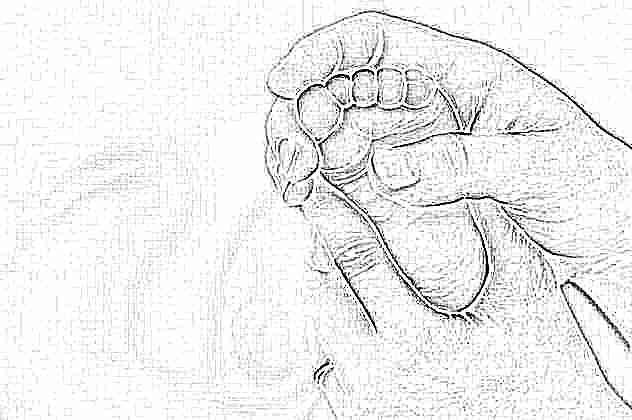 Какие упражнения делать при плосковальгусных стопах у малышей