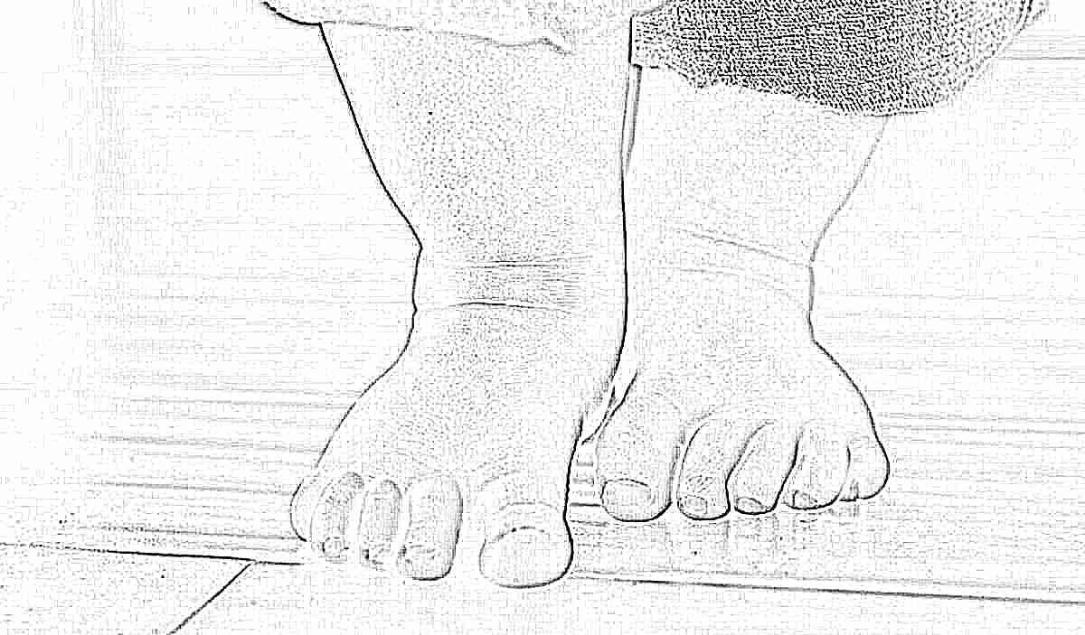 Вальгусная деформация стопы у взрослых лечение плоско-вальгусной установки нижних конечностей упражнения