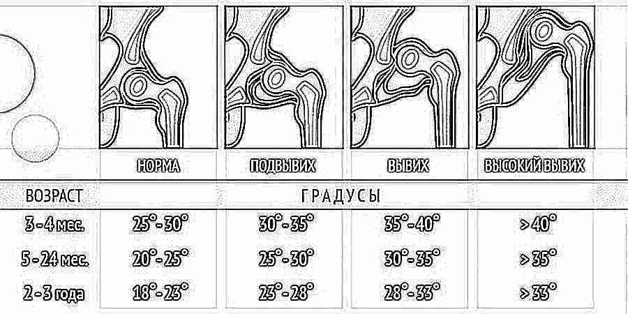 прибор для лечения суставов светодиодный