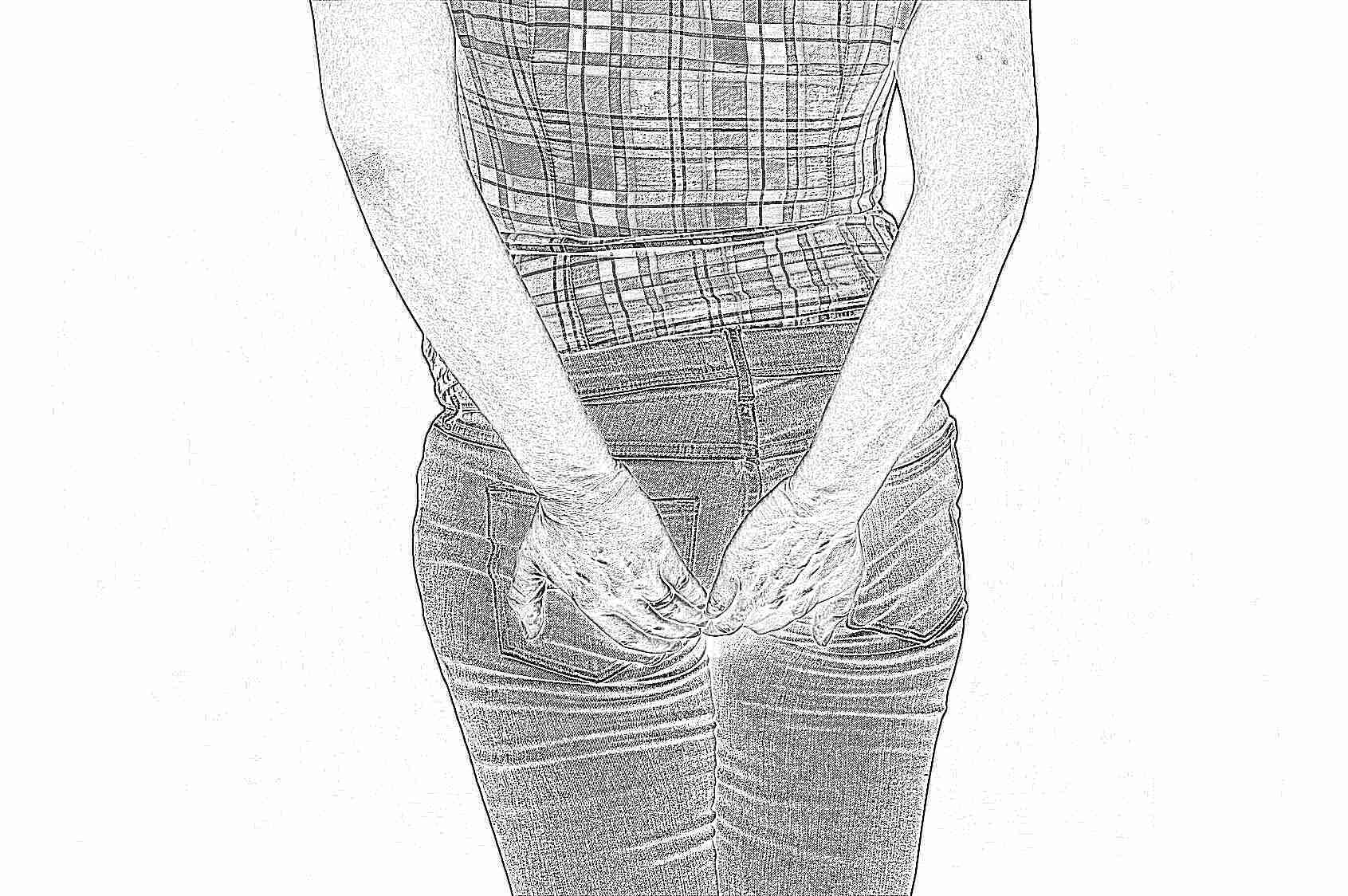 геморрой симптомы у женщин и лечение отзывы
