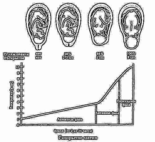 За каждый час шейка матки открывается на 2 см у первородящих, и на 2,5 см при повторных родах.