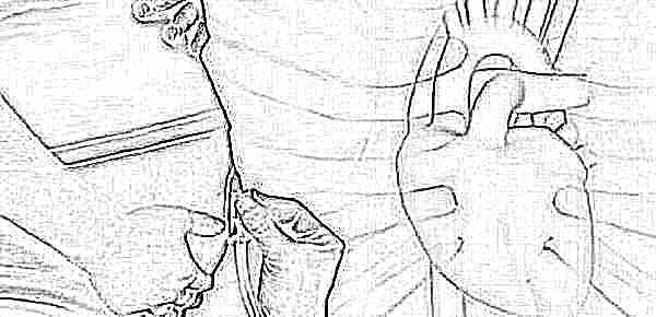Гиперэхогенный фокус в левом желудочке сердца плода