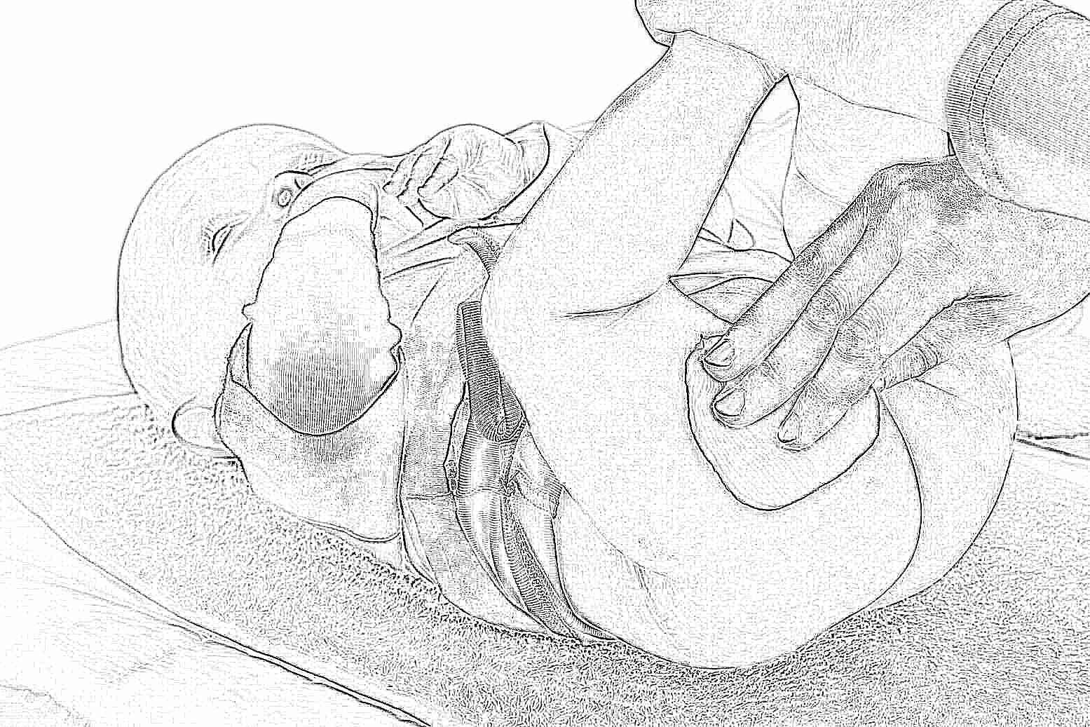 Опрелости у новорожденного как лечить быстро