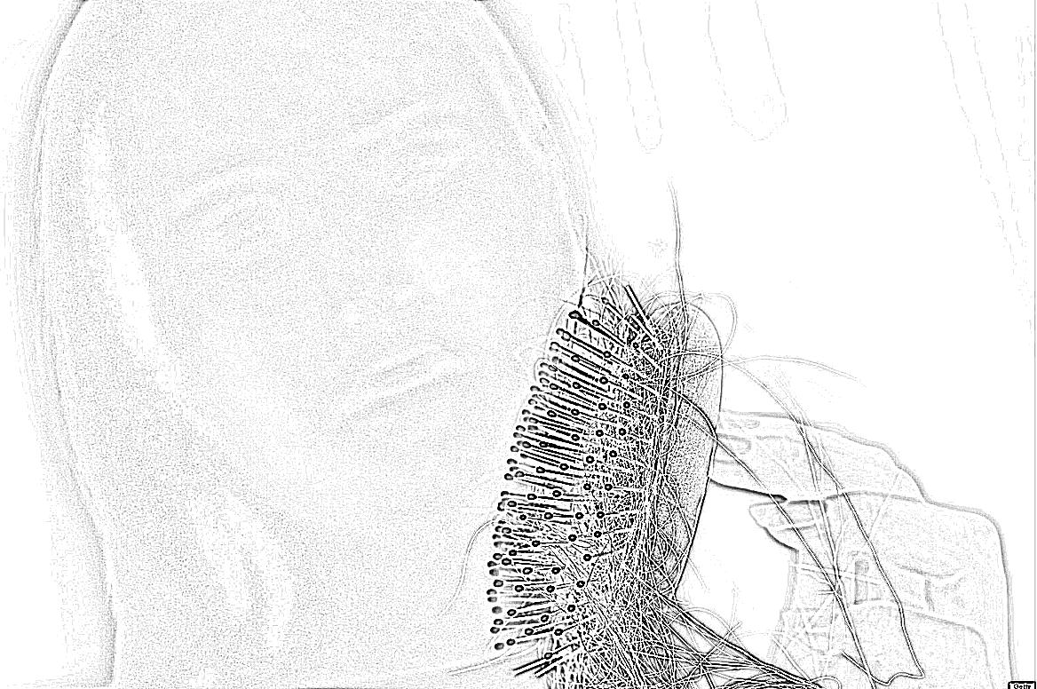 Выпадение волос при беременности что делать