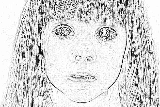 Абсансная эпилепсия у детей – что нужно знать родителям