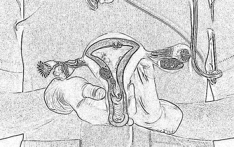 Что такое фолликулы в яичниках у женщин, причины обеднения фолликулярного аппарата