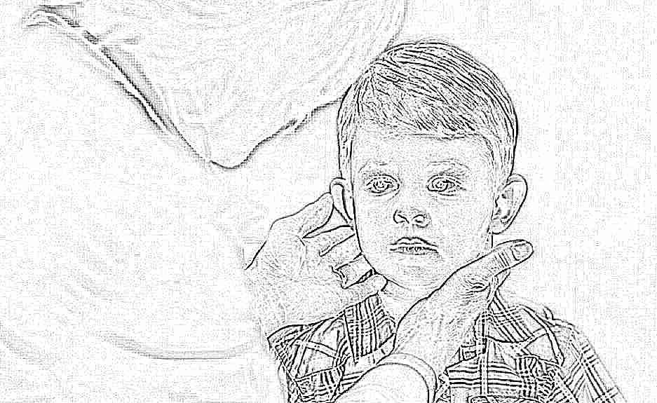 Гипотиреоз у детей диагностика