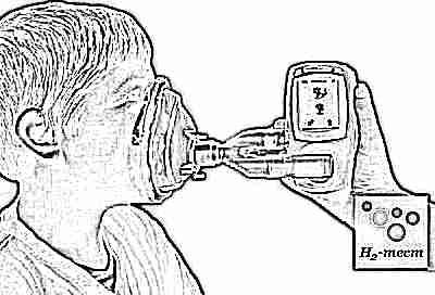 Непереносимость лактозы - водородный тест
