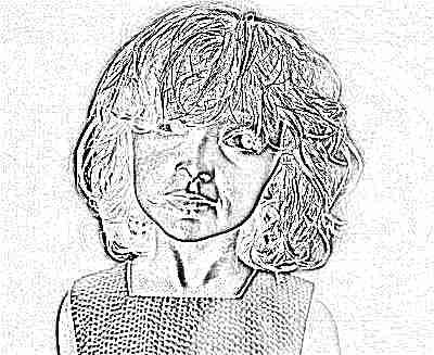 Аллергопробы у девочки