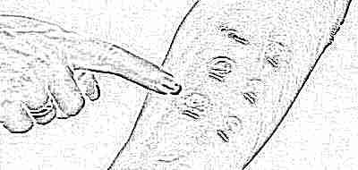 Результат анализа кожной пробы